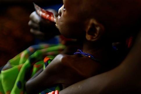 ΟΗΕ: O λιμός, η μεγαλύτερη ανθρωπιστική κρίση από το 1945